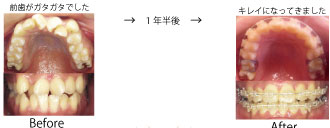 hayashi-jyutsuzengo.jpg