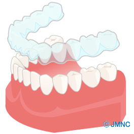 img_bruxism_cause01.png